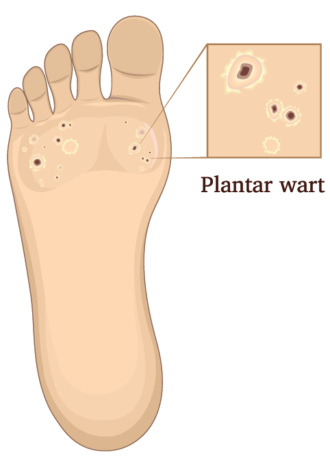 Plantar Wart Removal Surgery Aftercare