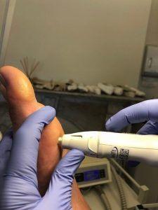 qualified swift plantar wart treatment in [suburb]